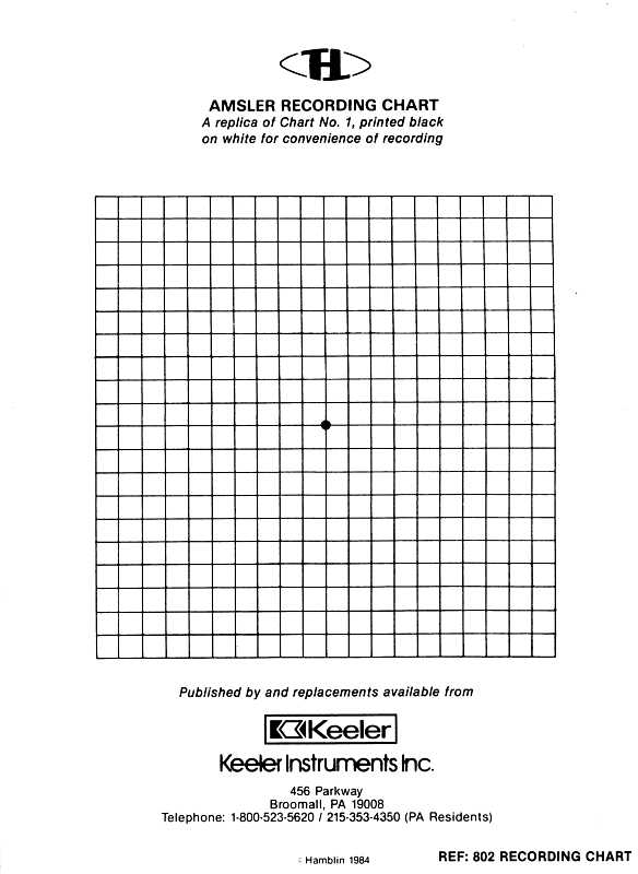 my right eye – Regular Graph Paper